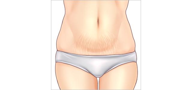 妊娠線の図
